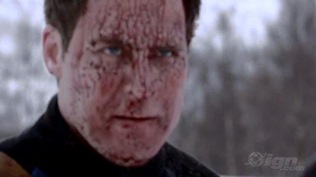 Dead Snow Movie Clip - Cold Blooded Kill