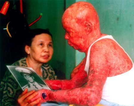File:Agent-Orange-dioxin-skin-damage-Vietnam.jpg