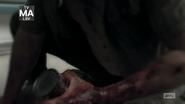5x05 Bloody Hand