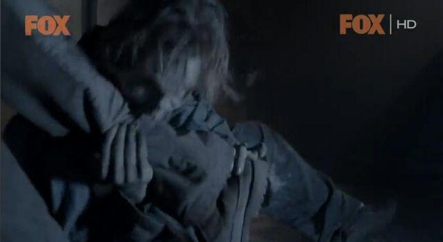 File:Hershel's Leg is a goner.JPG