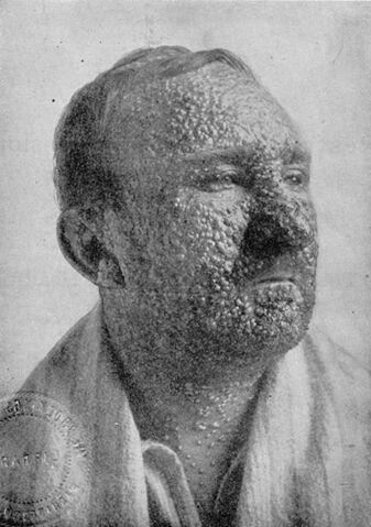 File:Smallpox IL1lg.jpg