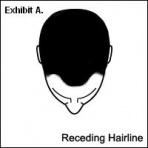 File:Receding hairline.JPG