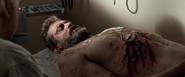 Logan's Wounds (LOGAN)