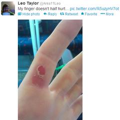 Leo's blistered finger.