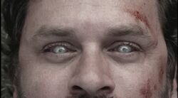 Garnett zombie