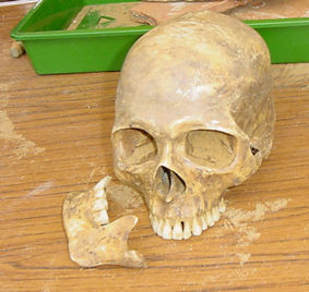 File:Skull and Jaw.jpg